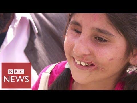 Injured Aghan girl returns home – BBC News